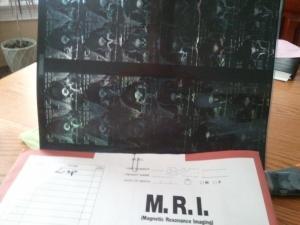 MRI Films